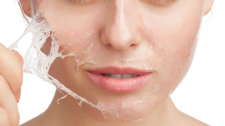 Smoother Skin with a Chemical Peel