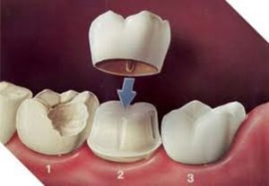 crowning a tooth