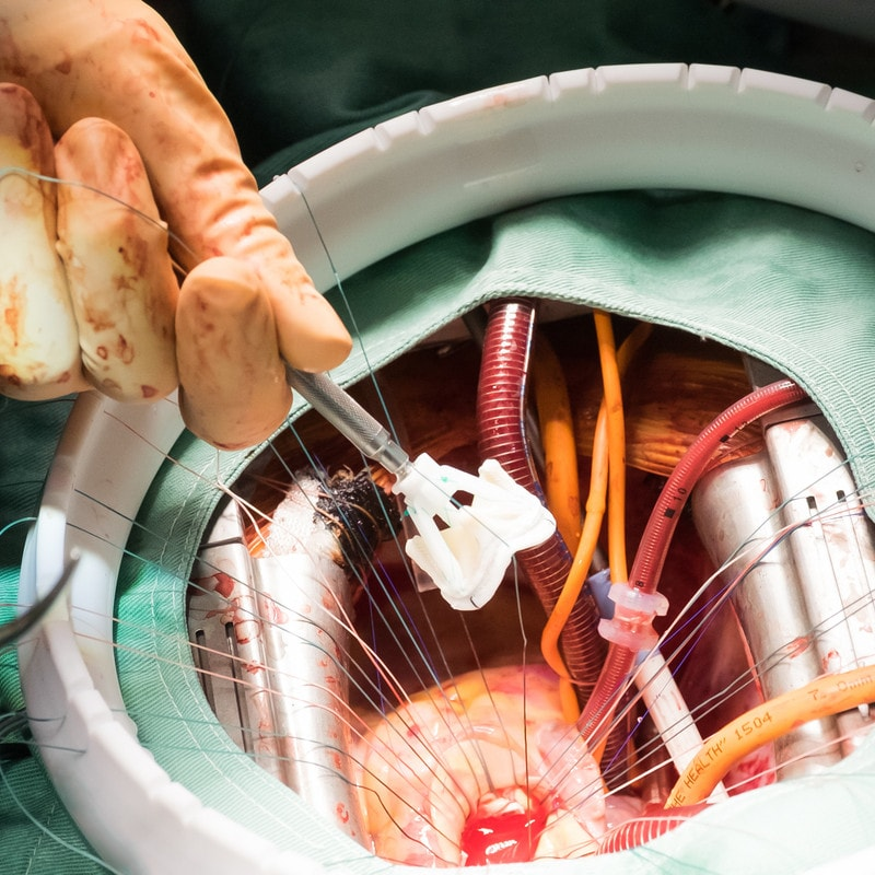 Heart valve replacement surgery