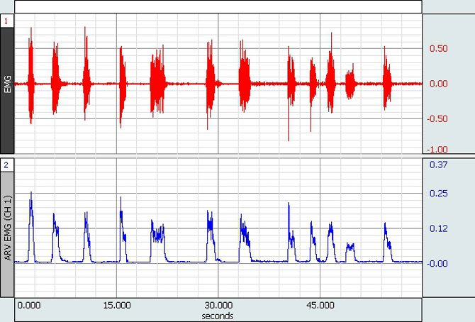 Summary of Electromyogram